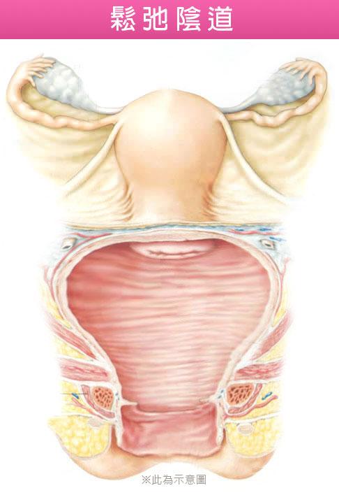 陰道管徑,陰道長度,陰道鬆弛,渾然天成,陳淑賢醫師,剖腹產,自然產,陰道嚴重鬆弛,產後陰道鬆弛